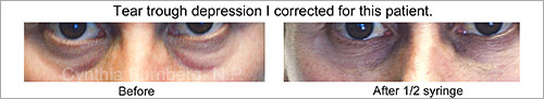 Juvederm tear trough treatment before and after photos