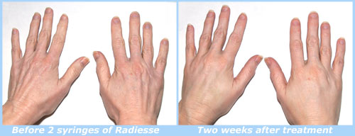 Radiesse for hands before and after photos