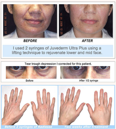 Juvederm, Radiesse, Botox, Dysport before and after pictures